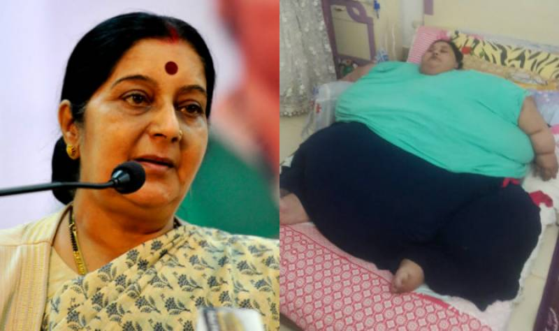 دنیا کی وزنی ترین مصری خاتون کی بھارت میں سرجری ہوگی