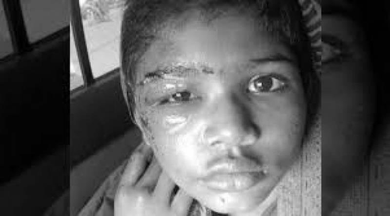 منصف کے گھر ناانصافی!!! کم سن ملازمہ پر تشدد کیس کا متوقع ڈراپ سین