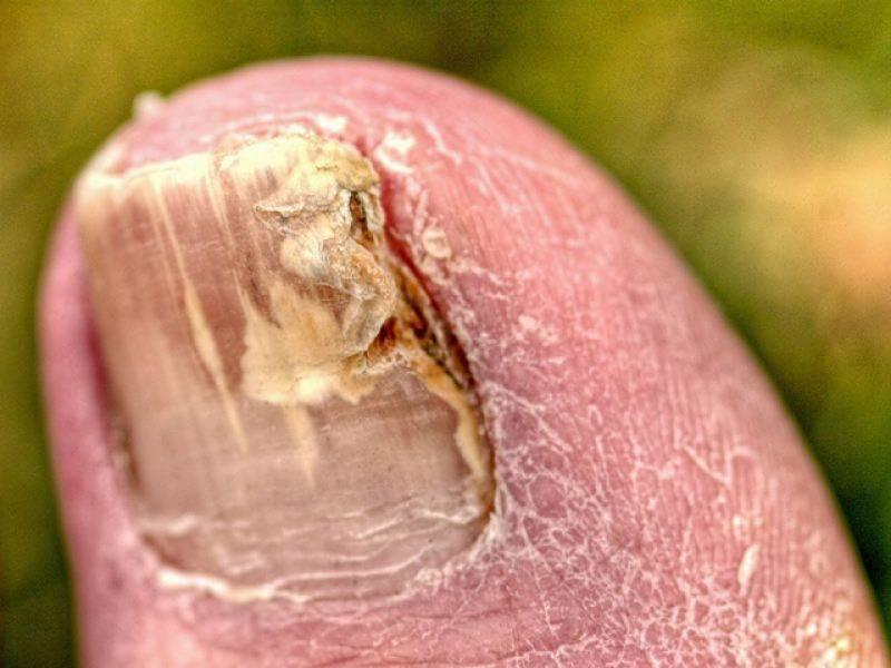 پیر کے ناخنوں پر جمع ہونے والی اس بدنما 'فنگس' سے نجات کیسے پائی جاسکتی ہے؟ انتہائی آسان نسخہ