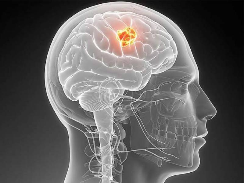 دماغی کینسرکےمریضوں کیلئے ملیریا کی ایک دوا نے امید کے نئے دروازے کھول دیئے