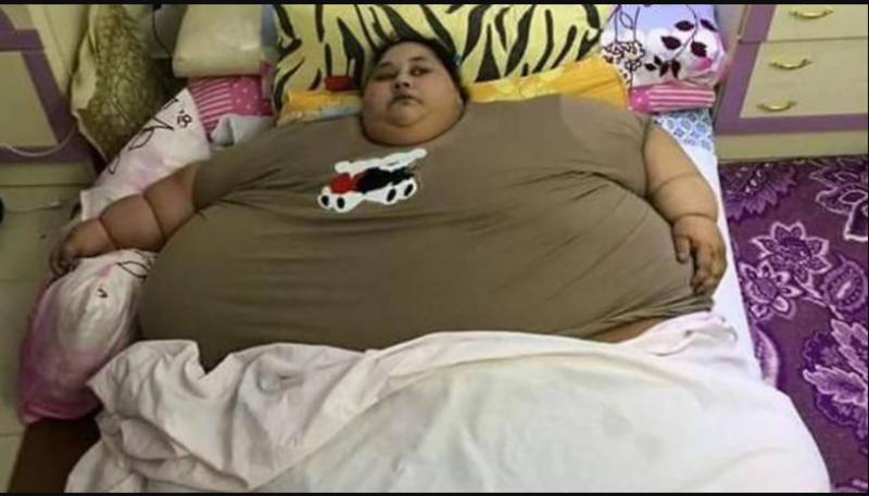 ممبئی : مصری لڑکی کے وزن میں نمایاں کمی ، ڈاکٹروں نےجسم سے 75فیصد چربی ختم کر دی