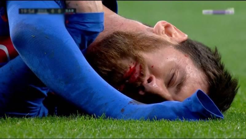بارسلونا کے سٹار فٹبالر لائنل میسی دانت سے محروم ہو گئے