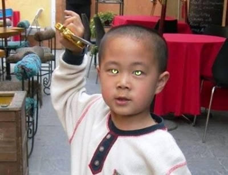 بلی جیسی آنکھیں رکھنے اور اندھیرے میں دیکھنے والا دنیا کا واحد بچہ