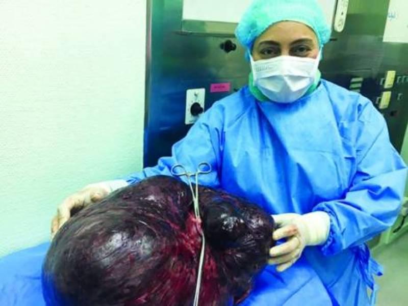 دبئی میں ڈاکٹرز نے خاتون کے پیٹ سے 17.5کلو کا ٹیومر نکال لیا