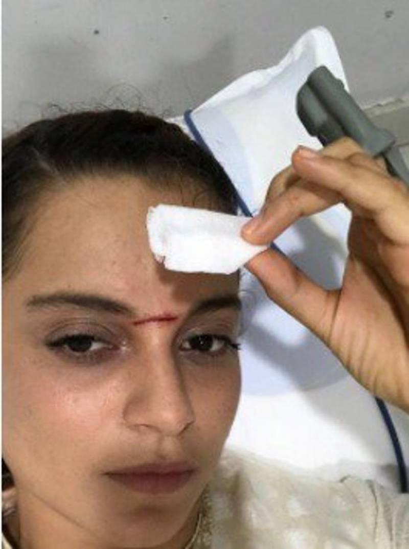 معروف اداکارہ کنگنا رناوت شدید زخمی