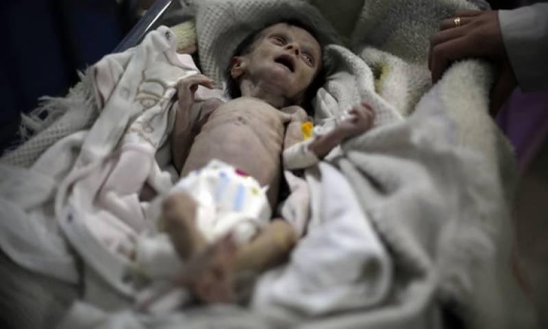 ایک ماہ کی شامی بچی جو خوراک نہ ملنے کی وجہ سے انتقال کر گئی