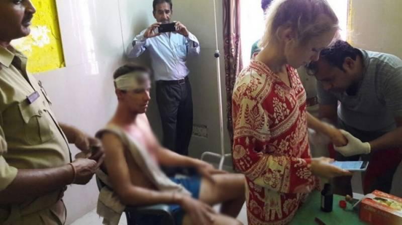 آگرہ میں دو غیرملکیوں پر پتھروں سے حملہ، جوڑا شدید زخمی ہو گیا