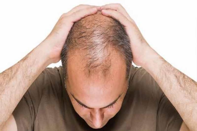 گرتے بالوں کو روکنے والا انتہائی آسان نسخہ سامنے آگیا