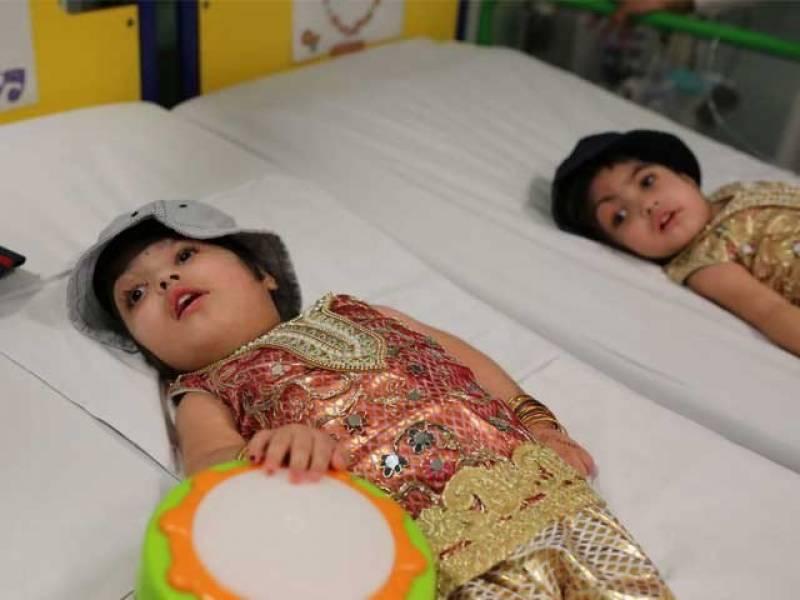 برطانیہ میں پاکستانی سر جُڑی بچیوں کا کامیاب آپریشن