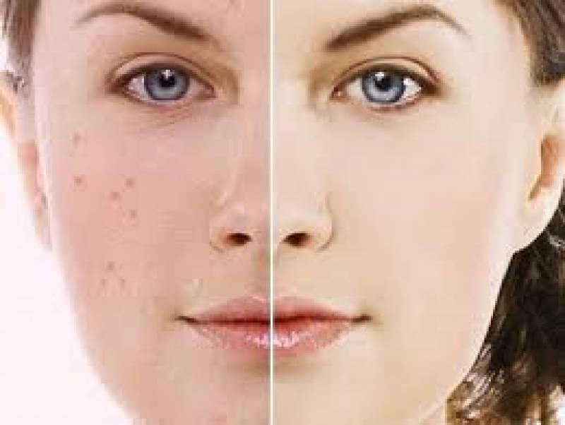 چہرے کے داغ دھبے ختم کرنے کا آسان ترین گھریلو نسخہ