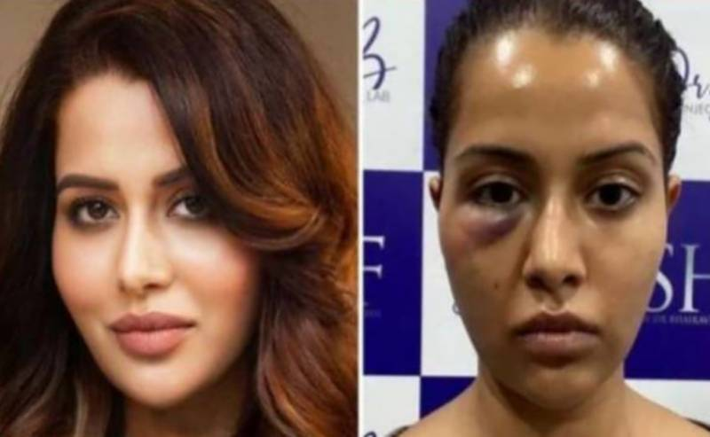 معروف اداکارہ کو فیشل کروانا مہنگا پڑ گیا