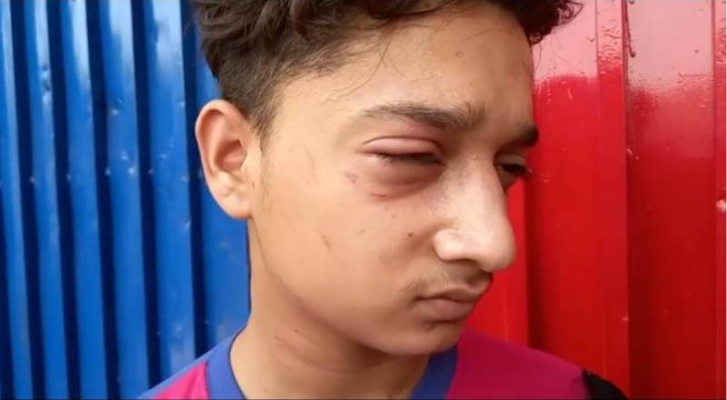 لاہور میں نجی سکول کے ٹیچر کا طالب علم پر بدترین تشدد، نازک اعضا متاثر