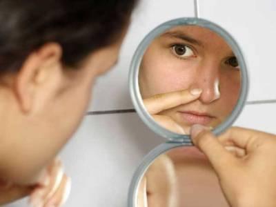 چہرے کی کیل مہاسوں سے نجات کا گھریلو نسخہ