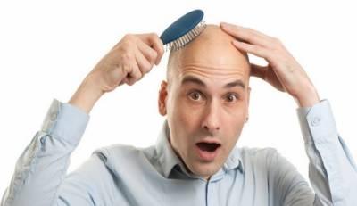 اب گنجے بھی بالوں کی نعمت سے فیضیاب ہوسکیں گے