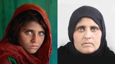 افغان خاتون شربت گلہ جلد مفت علاج کے لیے بھارت روانہ ہونگی