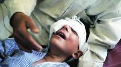 مقبوضہ کشمیر میں چار ماہ کے دوران 6205شہریوں کو پیلٹ گن کا نشانہ بنے