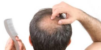 ایسی مصنوعات جن کے استعمال سے بال جلد گرتے ہیں
