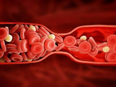 کیا آپ کی خون کی شریانوں میں بھی کہیں بندش ہے؟ جانئے وہ 6 علامات جو آپ کی زندگی بچاسکتی ہیں