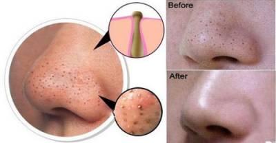 چہرے اور جسم سے اس طرح کے نشانات صاف کرنے کا انتہائی آسان قدرتی نسخہ