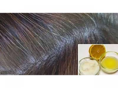 لیموں میں یہ قدرتی چیز ملا کر آپ اپنے سفید بالوں کو پھر سے سیاہ کرسکتے ہیں، جانئے انتہائی آسان اور مفید قدرتی نسخہ