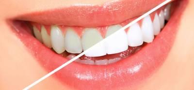دانتوں کی پیلاہٹ دور کرنے کا قدرتی طریقہ علاج