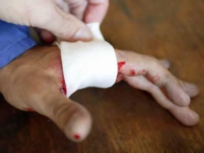 مریض کے اپنے خون سے زخموں کے علاج میں غیرمعمولی کامیابی