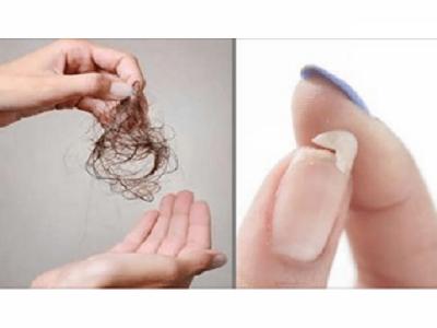 آپ کے بال یاناخن اس طرح ہورہے ہیں تویہ انتہائی خطرناک بیماری ہے