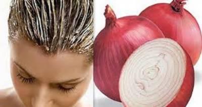 پیاز کے ذریعے گرتے بالوں کو روکنے اور گنج پن ختم کرنیکا انتہائی آسان طریقہ