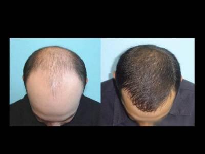 گنجوں کیلئے بڑی خوشخبری ،پیاز کے ذریعے بال پھر سے گھنے بنانےکا گھریلو طریقہ