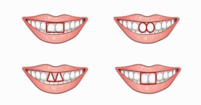 دانتوں کی ساخت سے شخصیت کا اندازہ لگائیں