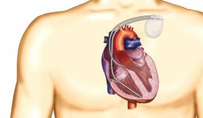 دل کے مریضوں کیلئے قیمتی ڈیوائس مفت لگانے کا اعلان