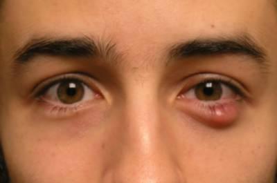 آنکھ کے کنارے سرخ بادہ کیوں بنتا ہے