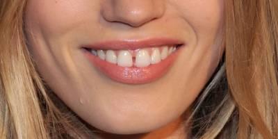دانتوں کے درمیان فاصلہ کیا ظاہر کرتا ہے