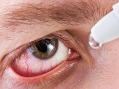 مون سون کے موسم میں آنکھوں کی بیماریاں بڑھ جاتی ہیں، ڈاکٹر واجد علی خان