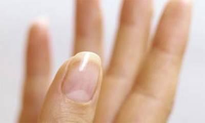 ناخنوں پر چاندکا نشان ہونا متعدد بیماریوں کی علامت ہے ،ماہرین