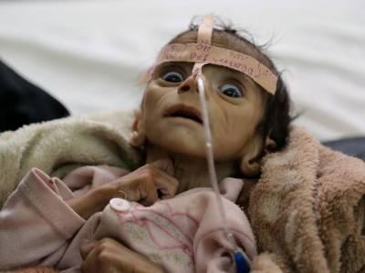 سعودی حملوں میں اب تک یمن میں 3ہزار بچے شہید ہو چکے ہیں