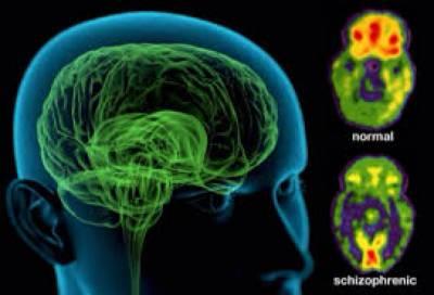 سائنسدانوں نے ذہنی بیماری شیزو فرینیا کے علاج میں نمایاں کامیابی حاصل کر لی