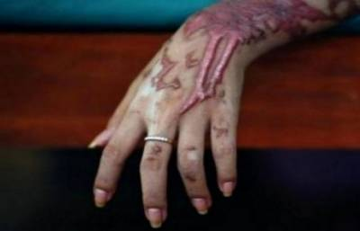 لاہور میں ایک اور لڑکی تیزاب کا نشانہ بن گئی ٗ بری طرح زخمی
