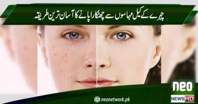 چہرے کے کیل مہاسوں سے چھٹکارا پانے کا آسان ترین طریقہ