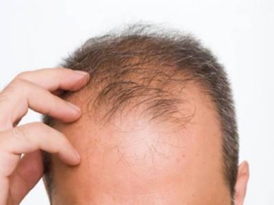 گرتے بالوں کو روکنے کا آسان ترین نسخہ سامنا آ گیا