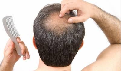 پیاز کا رس گرتے بالوں کو روکنے کے لیے انتہائی مفید