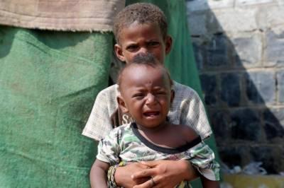 یمن میں ہزاروں افراد ہلاک ہو سکتے ہیں،اقوام متحدہ