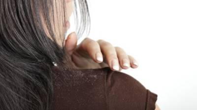 کیا آپ سر میں خشکی کو ختم کرنا چاہتے ہیں؟