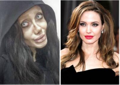 مسلمان لڑکی نے انجلینا جولی دکھائی دینے کے لیے 50سرجیاں کر والیں نتیجہ کیا نکلا ؟تصاویر دل تھام کر دیکھیں