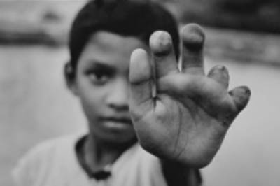 حوثیوں کی باردوی سرنگیں بچھانے والا 10 سالہ یمنی بچہ گرفتار