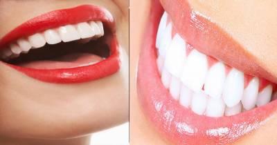 دانتوں کی پیلاہٹ دور کرنے کا سادہ ترین ٹوٹکا