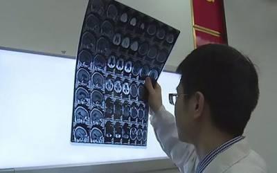چین میں ایک شخص کے دماغ میں کیچوے کے 30 انڈے پائے گئے