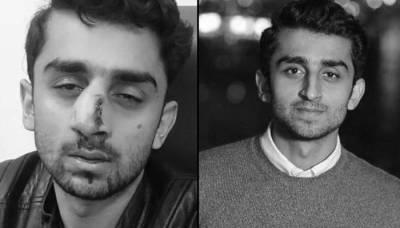 آسٹریلیا کی یونیورسٹی میں پاکستانی طالبعلم پر نسل پرستوں کا بہیمانہ تشدد