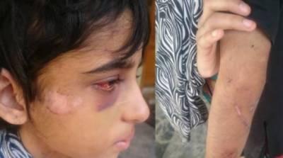 11 سالہ گھریلو ملازمہ پر تشدد، وفاقی وزیر برائے انسانی حقوق نے نوٹس لے لیا