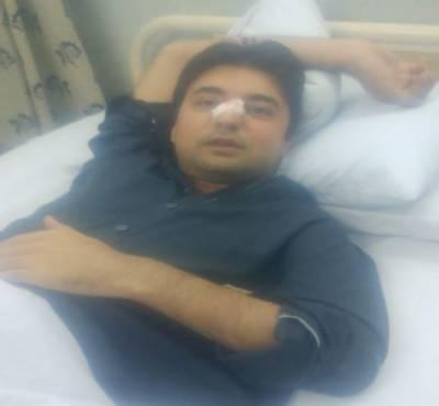 وزیر مملکت مراد سعید پاؤں پھسلنے سے گر کر زخمی ہوگئے